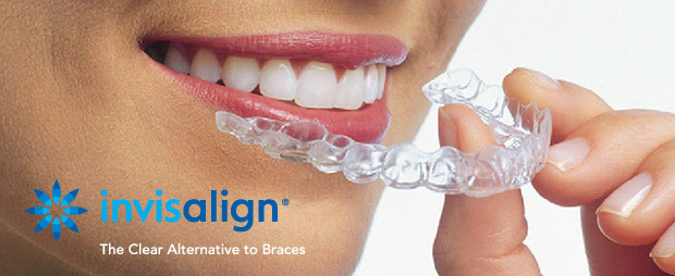 cosmetic-dental-services-invisalign