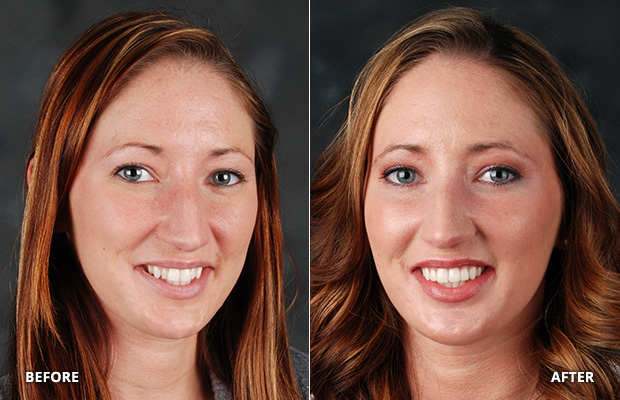 cosmetic-dentistry-courtney-before-after-1