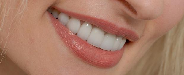 cosmetic-dental-services-veneers